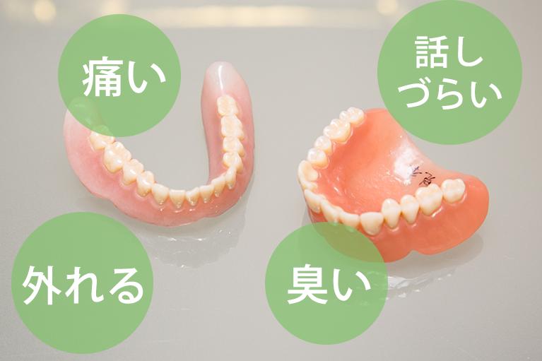 入れ歯の悩んでいませんか?