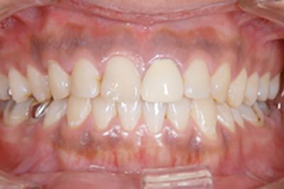 歯と歯茎の色が気になる(メラニン色素除去・ガムピーリング)