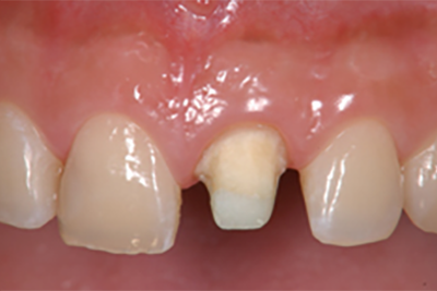 歯と歯茎の色が気になる (メラニン色素除去・ガムピーリング)