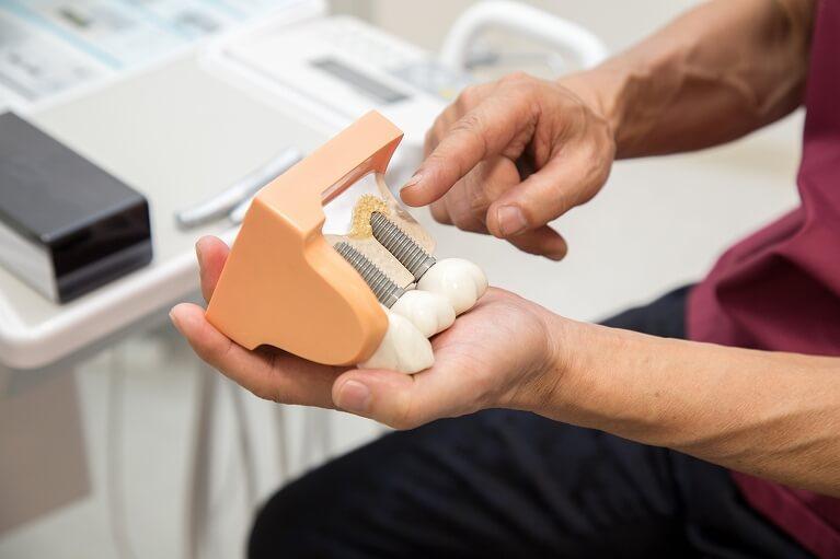 つつみ歯科医院のインプラント治療