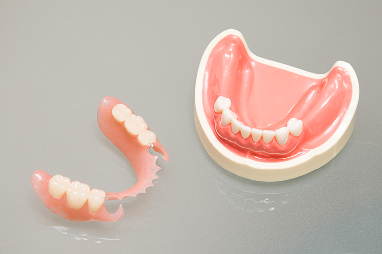 自費治療の入れ歯