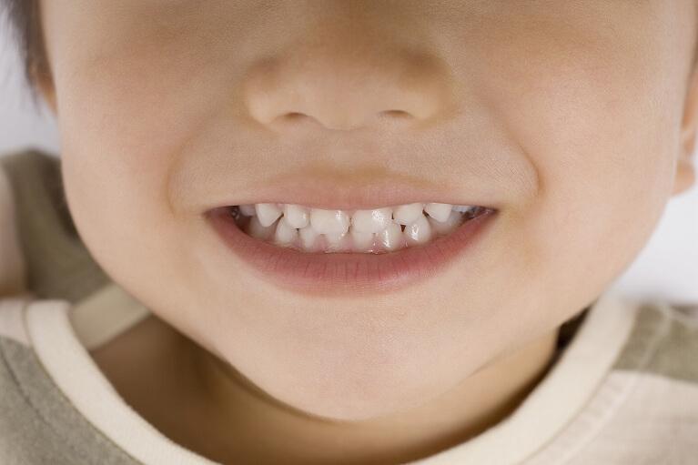 何歳から歯医者さんに行くの?